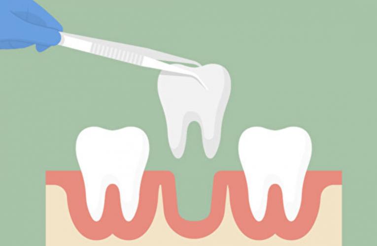 [新聞] 拔牙有講究 智齒變異性最大