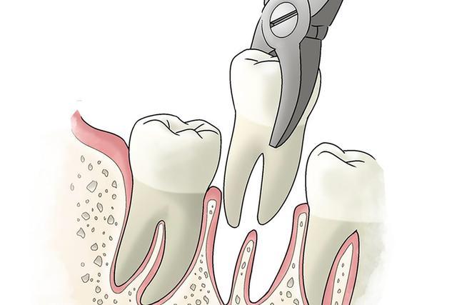 [新聞] 拔牙後疼多久?拔牙後疼痛怎麼辦?