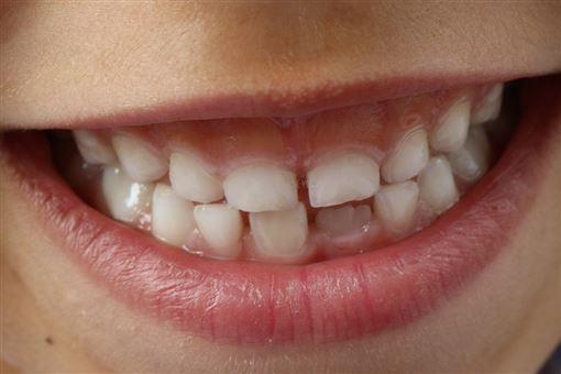 真的有人天生不容易蛀牙?牙醫:別以為細菌只侵犯牙齒