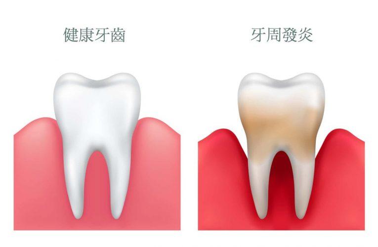 [新聞] 糖尿病受牙周病和缺牙數量影響 如果每天做這件事可預防